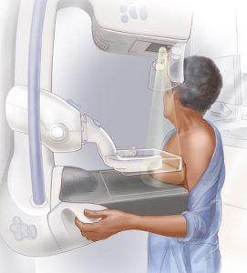 Mammography-e1491944088912-271x300